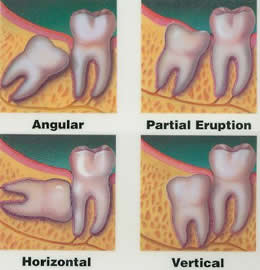 types of wisdom teeth extractions